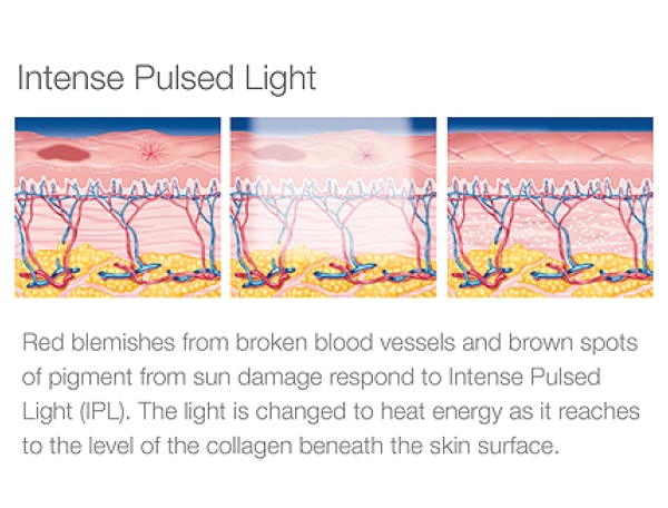 IPL Intense Pulsed Light - Body 'n' Beauty Worx